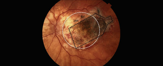 A retinal implant slows blindness caused by macular degeneration