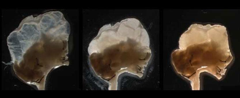 Logran un órgano humano completo y funcional en el laboratorio a partir de células